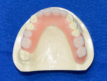 ミラクルデンチャー(部分入れ歯)