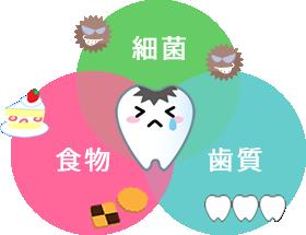 個別の検査を通し、ちょっとしたことで虫歯は予防できます
